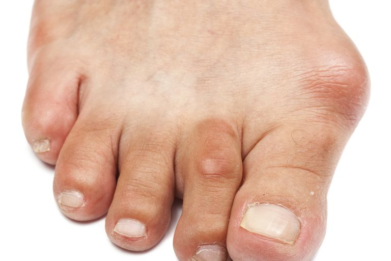 A bunion with skin irritation.