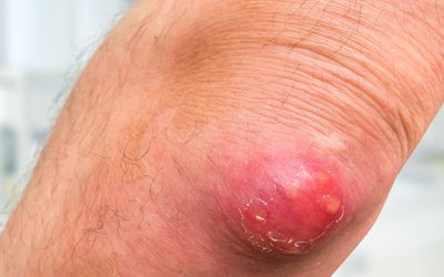 How to Spot and Treat Epidermoid Cysts