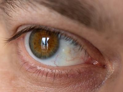 Pinguecula in the eye.
