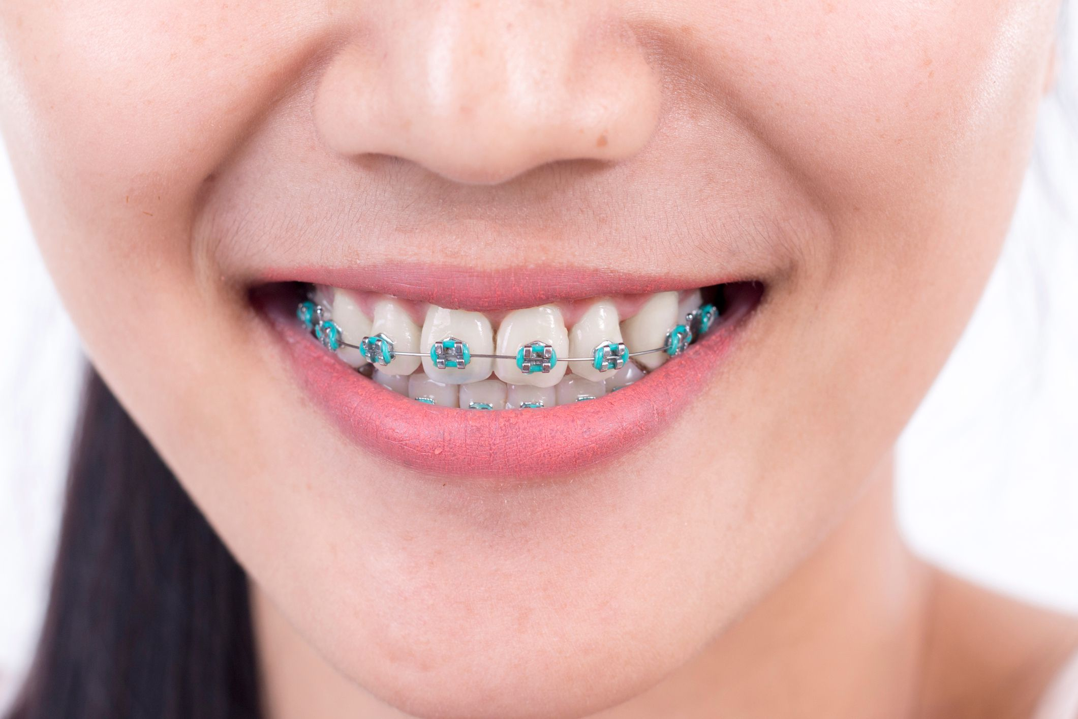 The Purposes of Rubber Bands on Braces