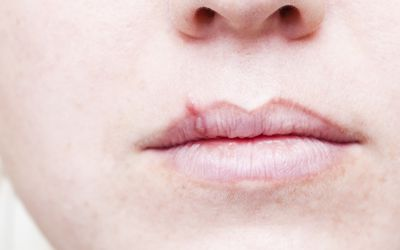 woman with mouth infection
