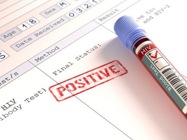 positive HIV test