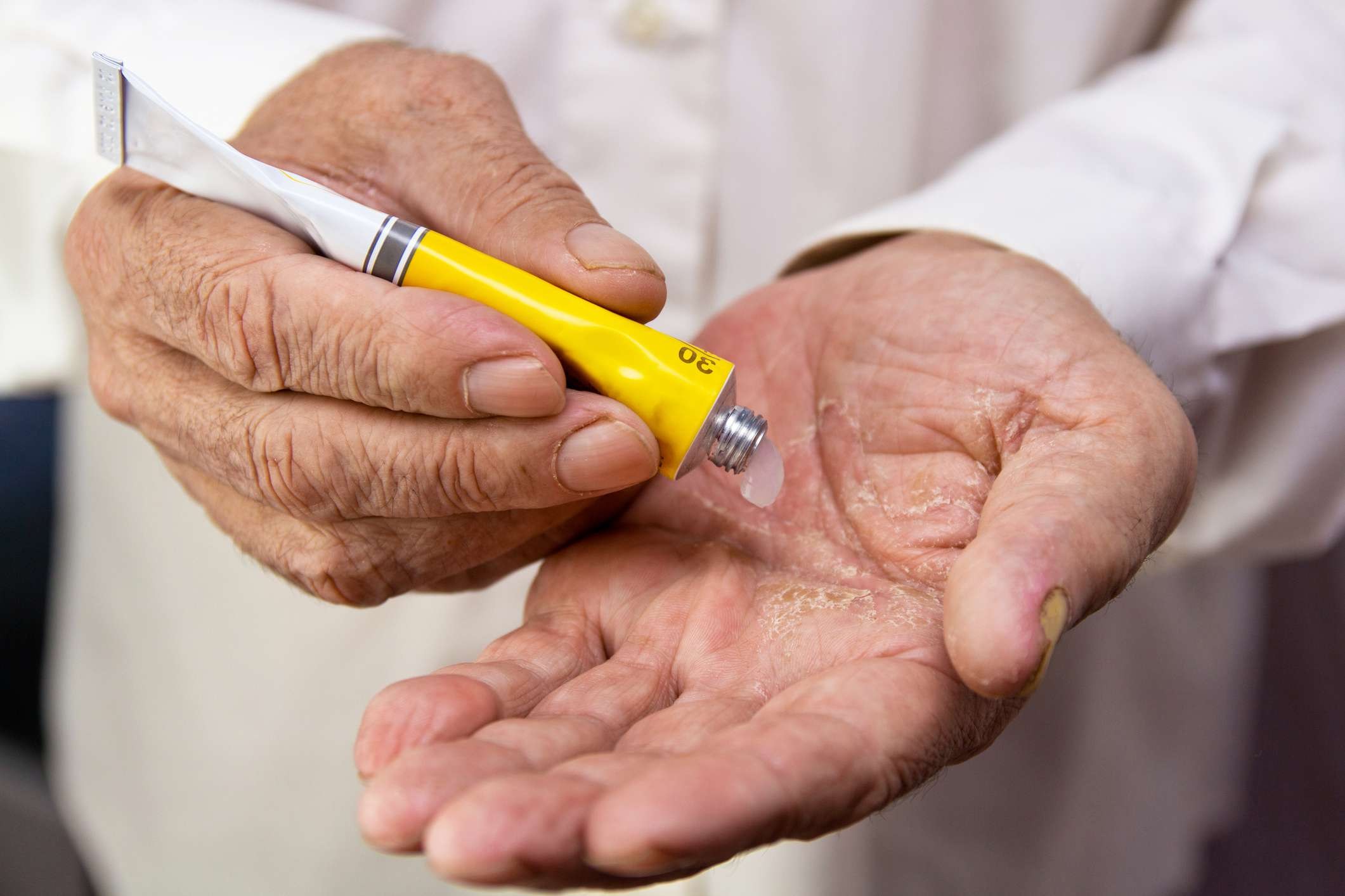 Ointment on the hands of an elderly person. Applying the ointment and emollient cream in the treatment and hydration of the skin . Problem skin in old age - stock photo