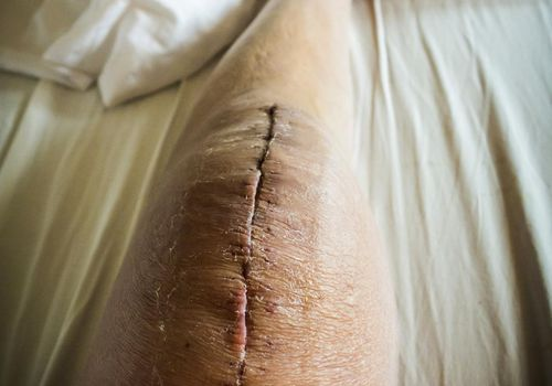 Scar on knee after surgery