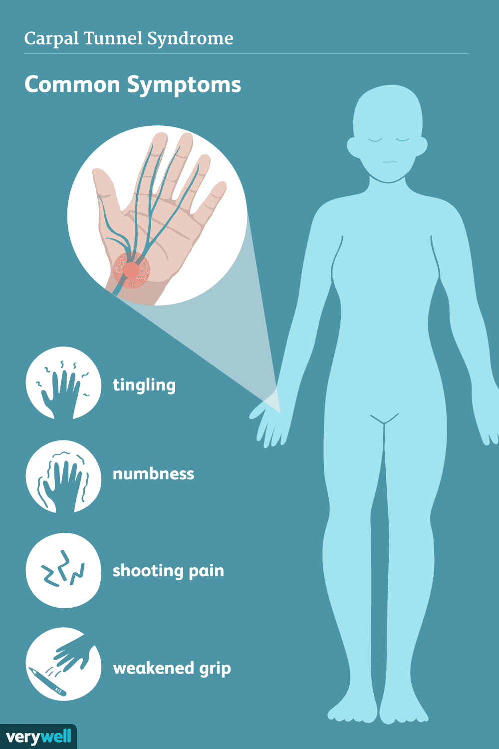 Carpal Tunnel Syndrome: Common Symptoms