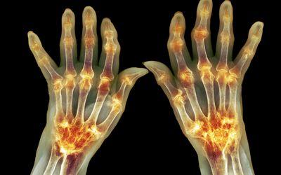 Dureri de spate mai mici si simptome de abdomen inferior