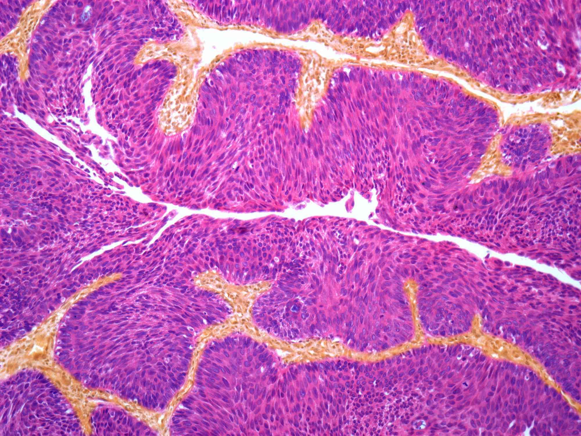 Bladder cancer, light micrograph