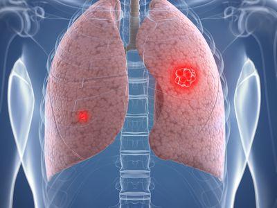 Lung cancer, artwork
