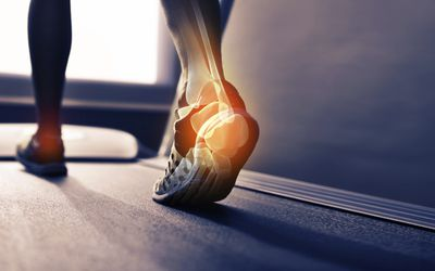 Photo of woman's ankle on treadmill.