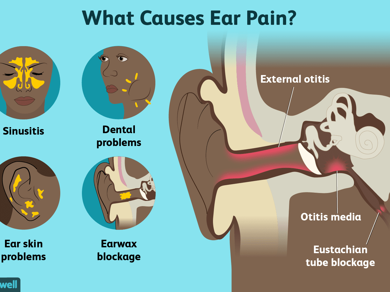Ear Pain Causes Treatment And When To See A Doctor