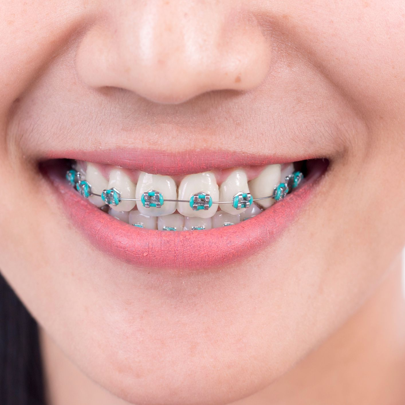 The Purpose Of Elastic Ligatures On Braces