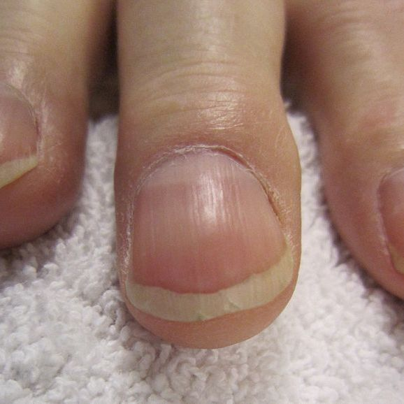 Gel Pedicures: Everything You Need to Know About Gel Pedicures ...