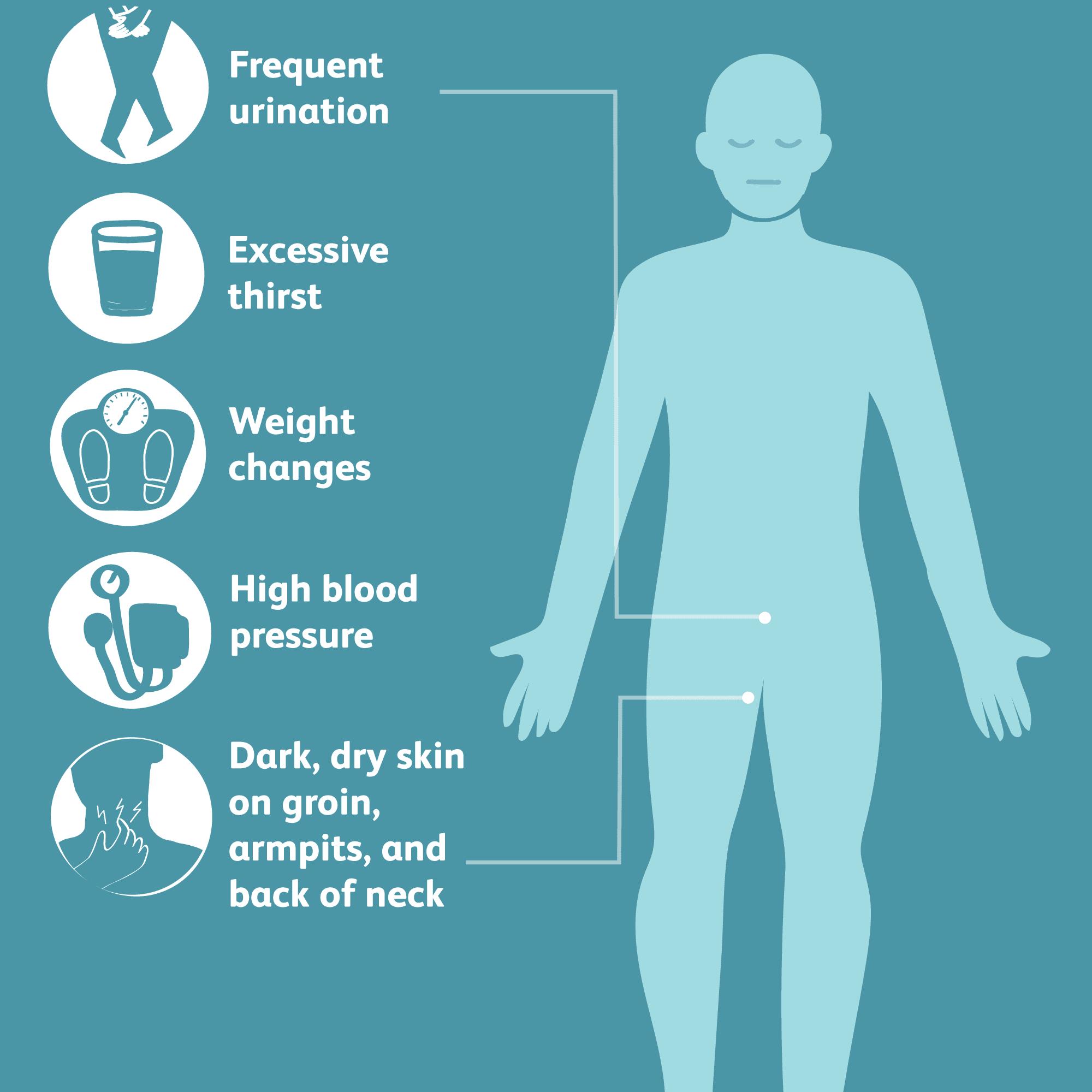 prediabetes and metabolic syndrome