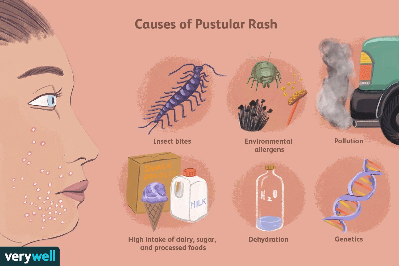 Causes of Pustular Rash