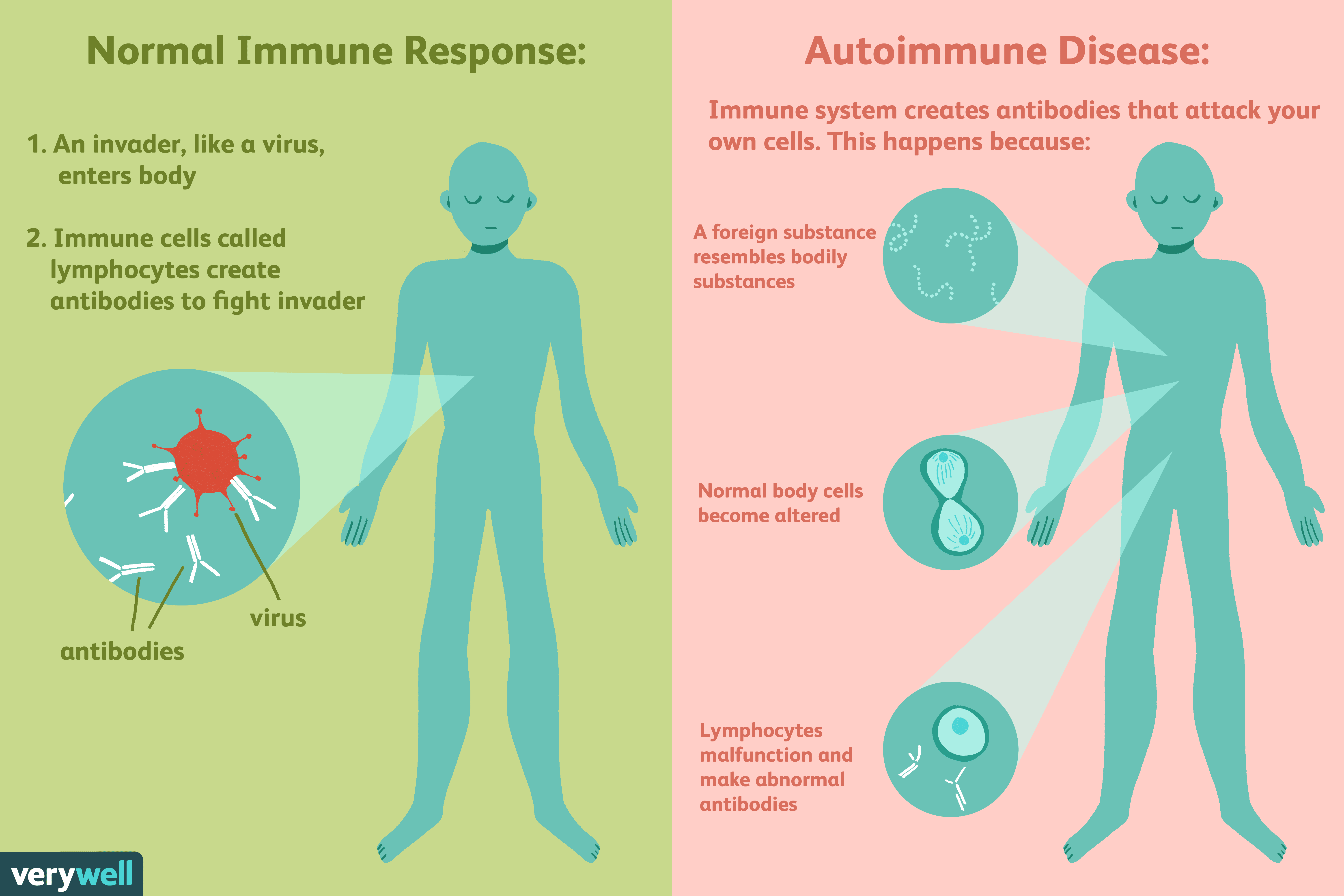 Autoimmune Diseases: Types, Causes, Diagnosis, & Treatment