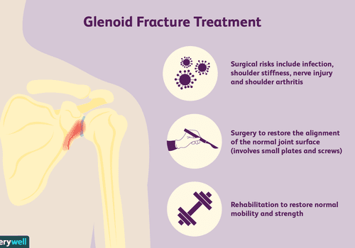 Glenoid Fracture Treatment