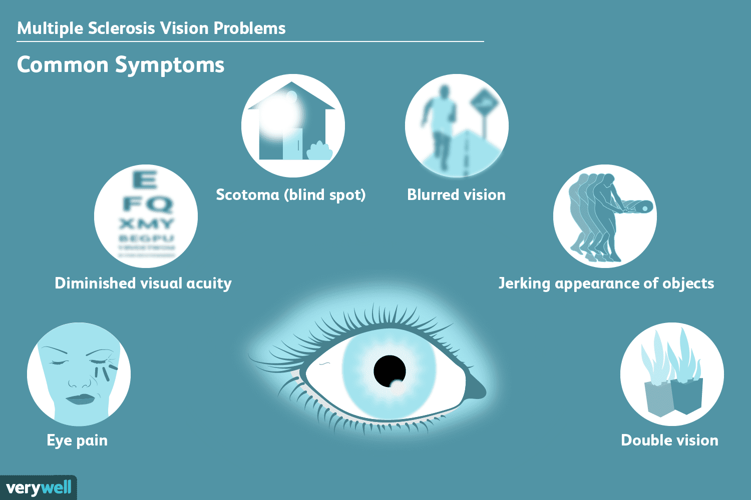 MS and vision problems