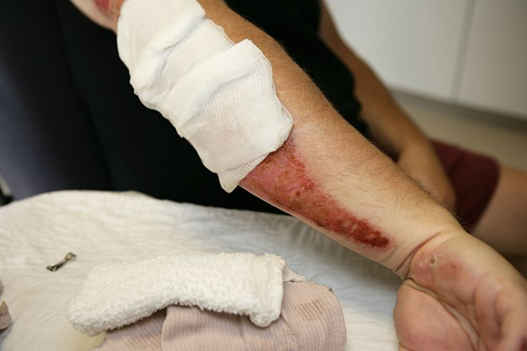 image of a person's arm with road rash