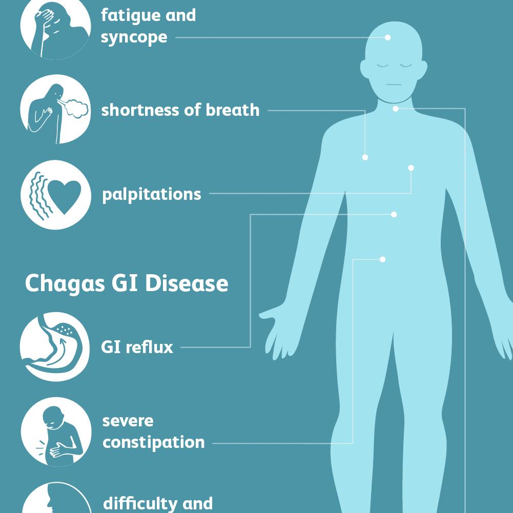 chagas symptoms