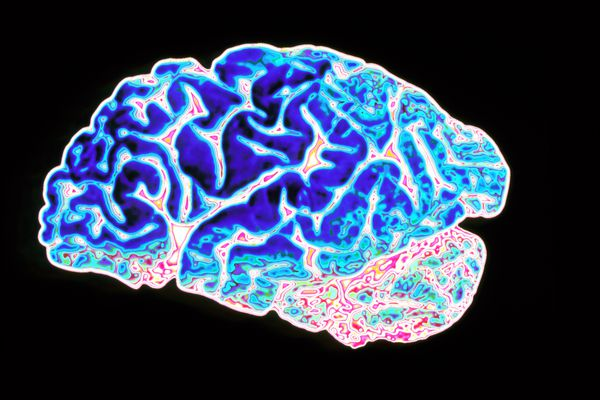 An image of a brain