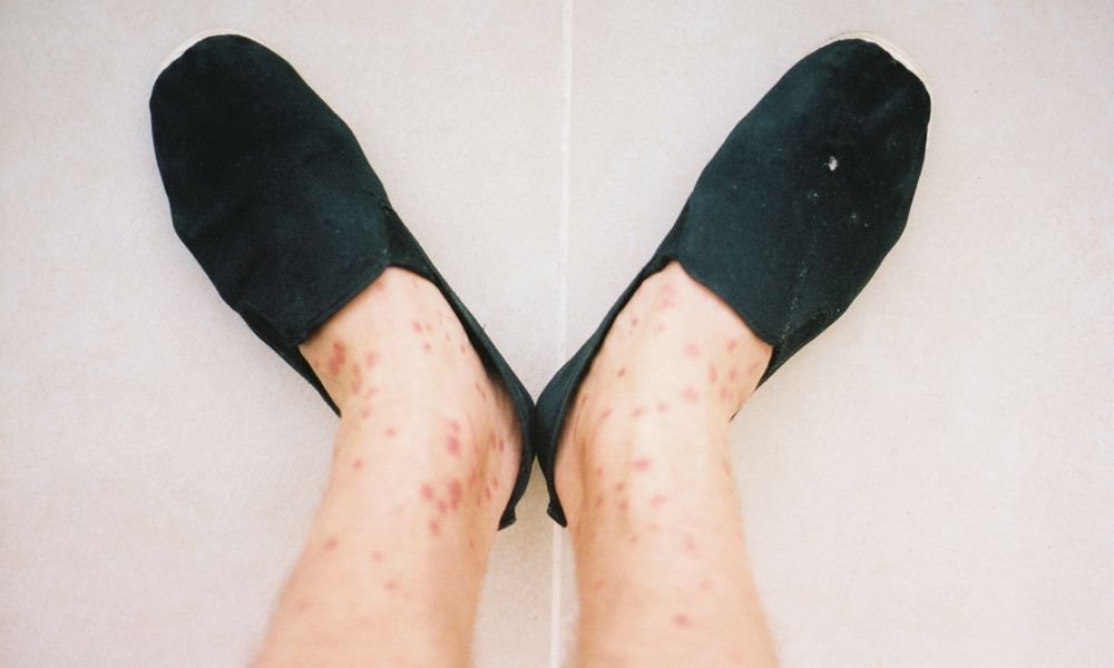 A man's legs covered in an allergic reaction