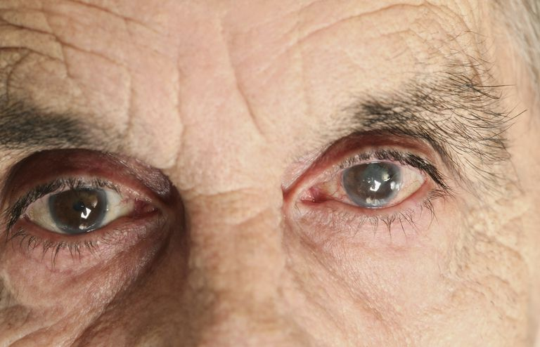Close up of elderly man's cloudy eyes