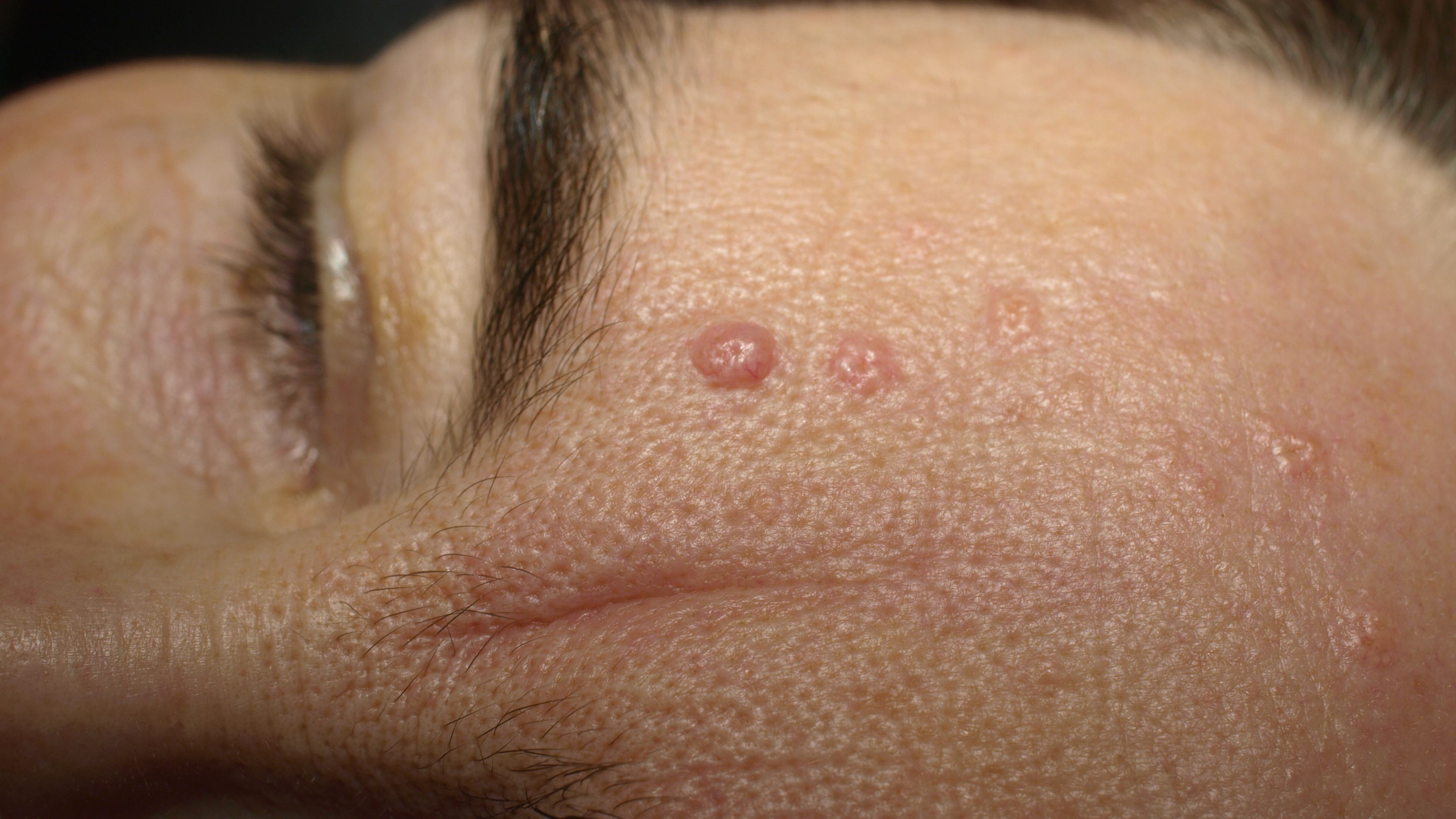 Sebaceous Hyperplasia Causes, Symptoms, and Treatments