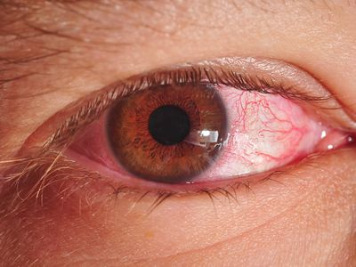 Pink eye, or conjunctivitis seen in an eye.