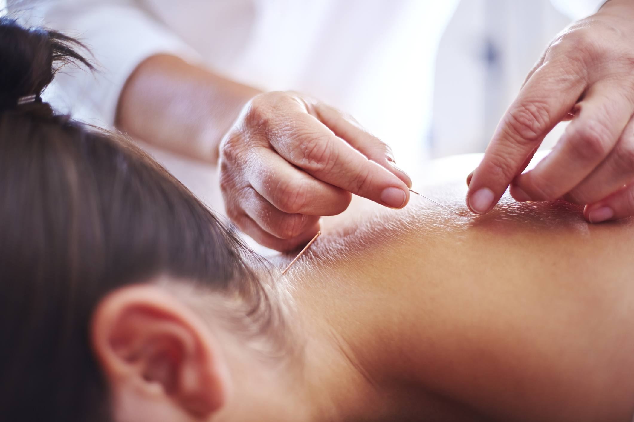 How to Become an Acupuncturist