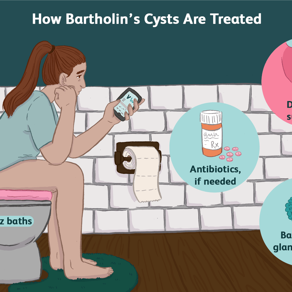 An Overview of Bartholin's Cyst