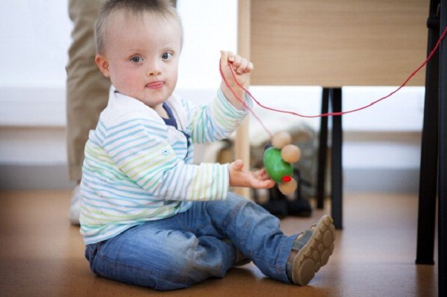 Physical and Health Features of Down Syndrome