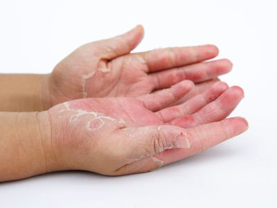 Rash and delamination of skin on the palms is a common symptom of chronic GvHD
