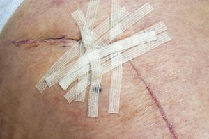 Healing hip replacement wound with steri-strips ready to be removed