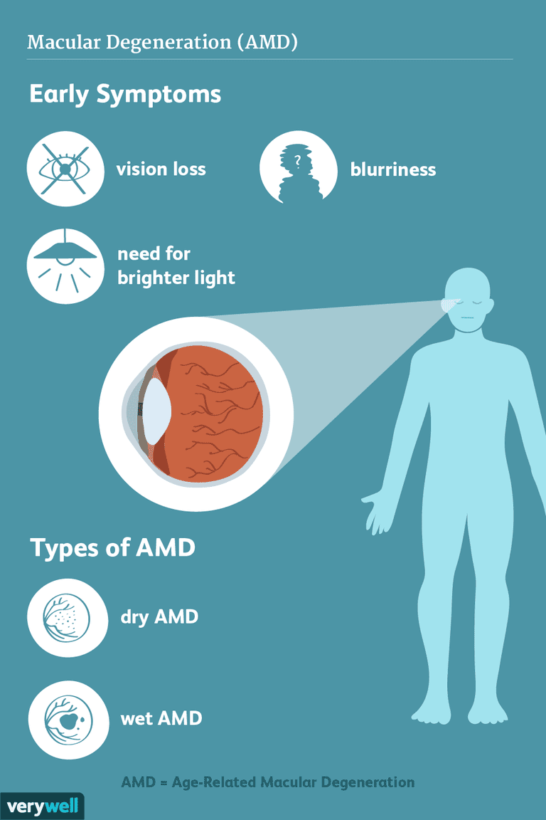 macular degeneration (AMD) symptoms