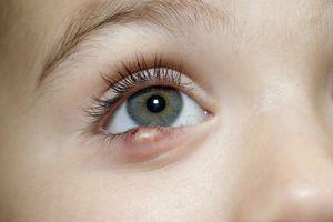 Toddler girl showing sty on her eye