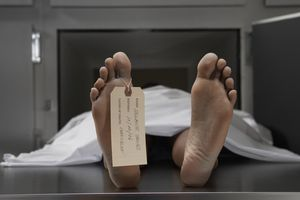 A cadaver on and autopsy table