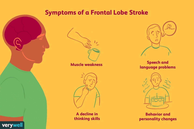 Symptoms of a frontal lobe stroke.