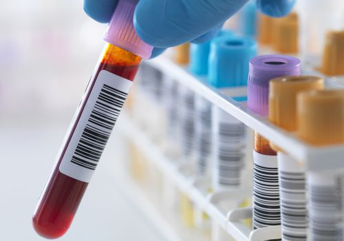 Lab technician holding vial of blood