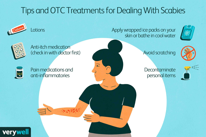 Scabies treatment options