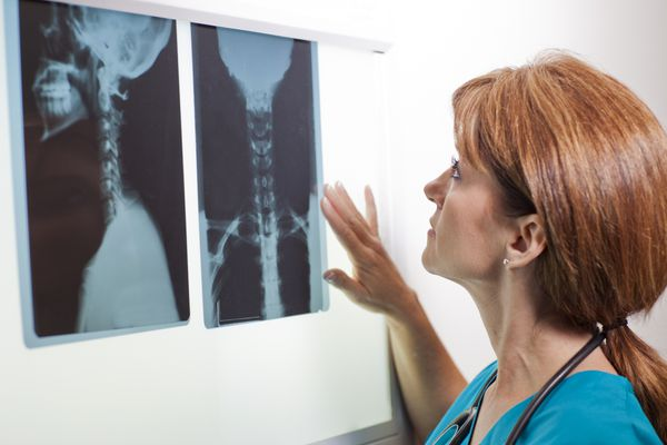 Woman doctor looking at neck x-rays.