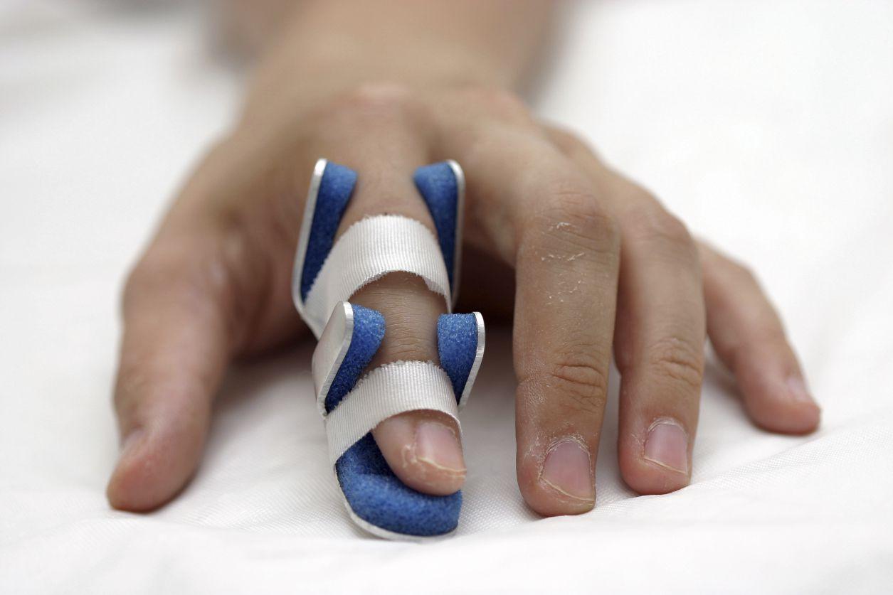 A broken finger in a splint