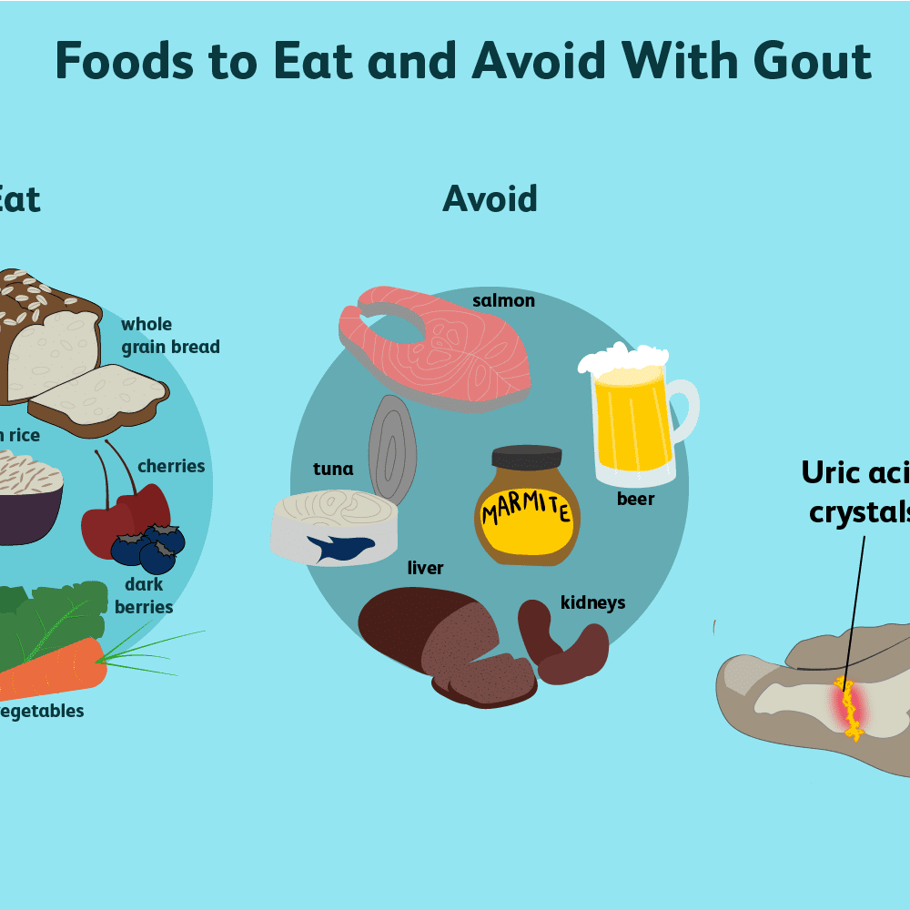 how to prevent gout with diet