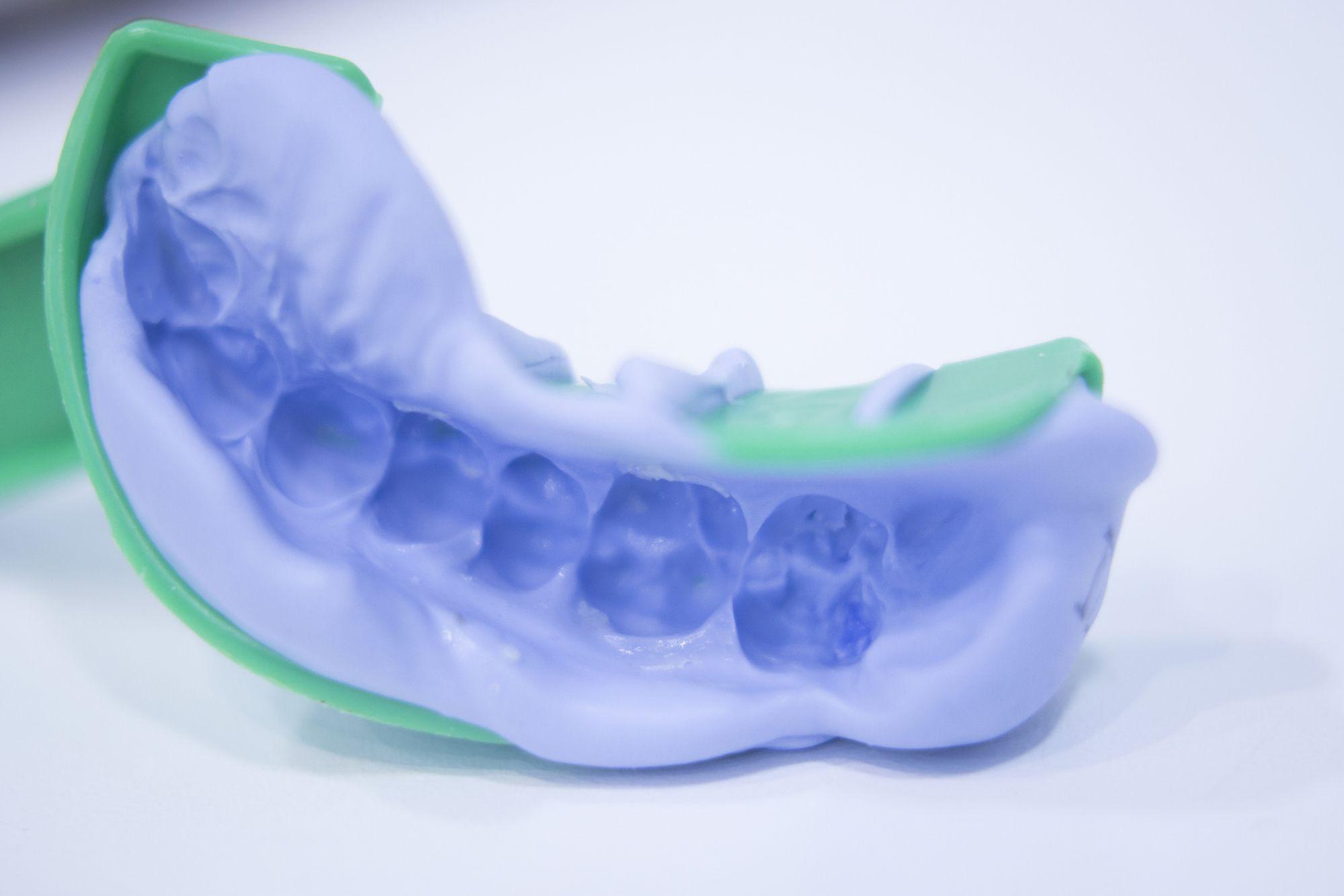 A dental tooth impression