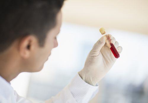 doctor looking at vial of blood