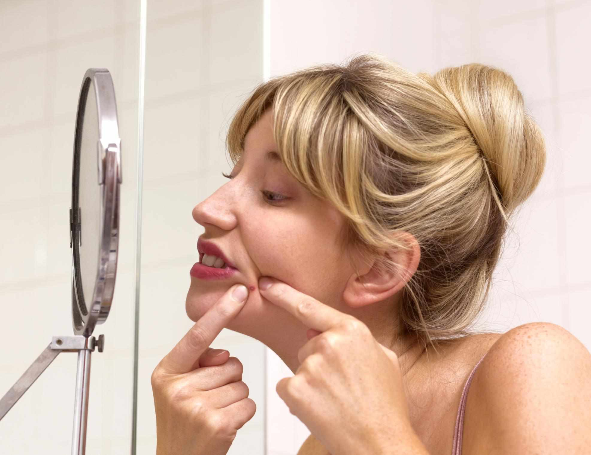 What You Should Not Do to Acne Skin