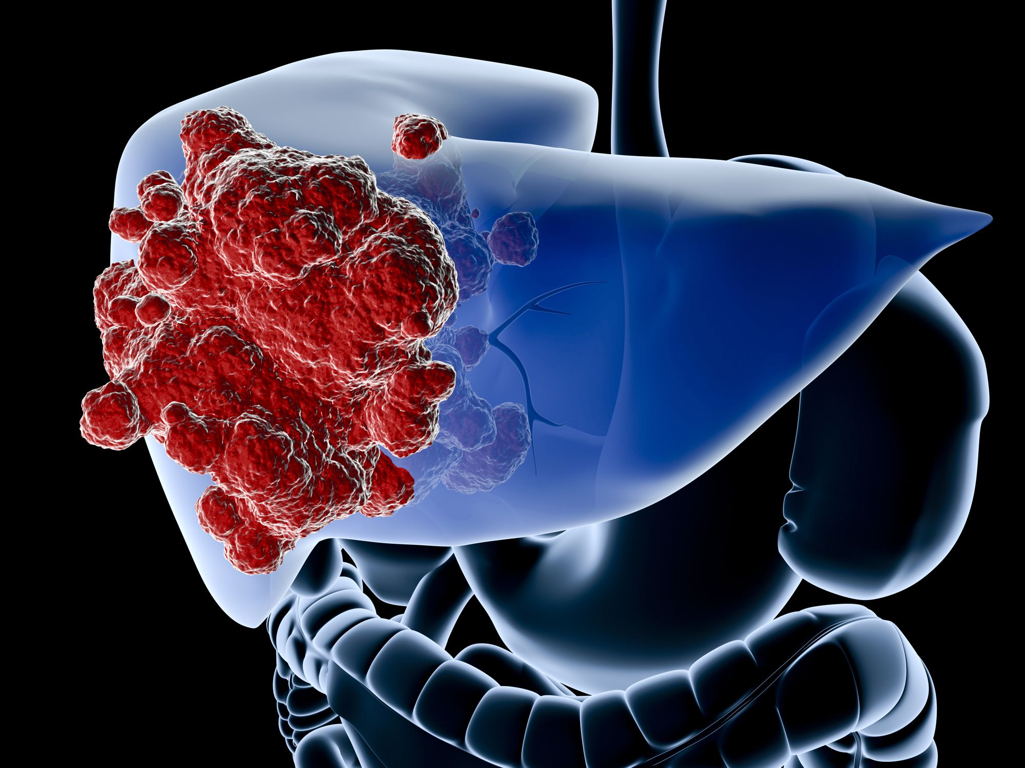 Breast Cancer Spread To The Liver Symptoms Treatment