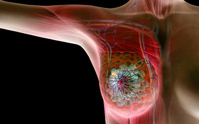 Breast Hematomas: Symptoms, Causes, Diagnosis, and Treatment
