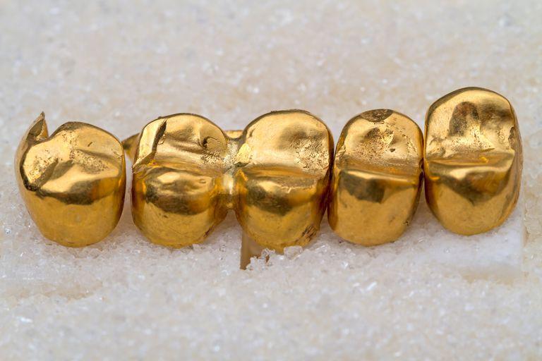 Gold dental crowns