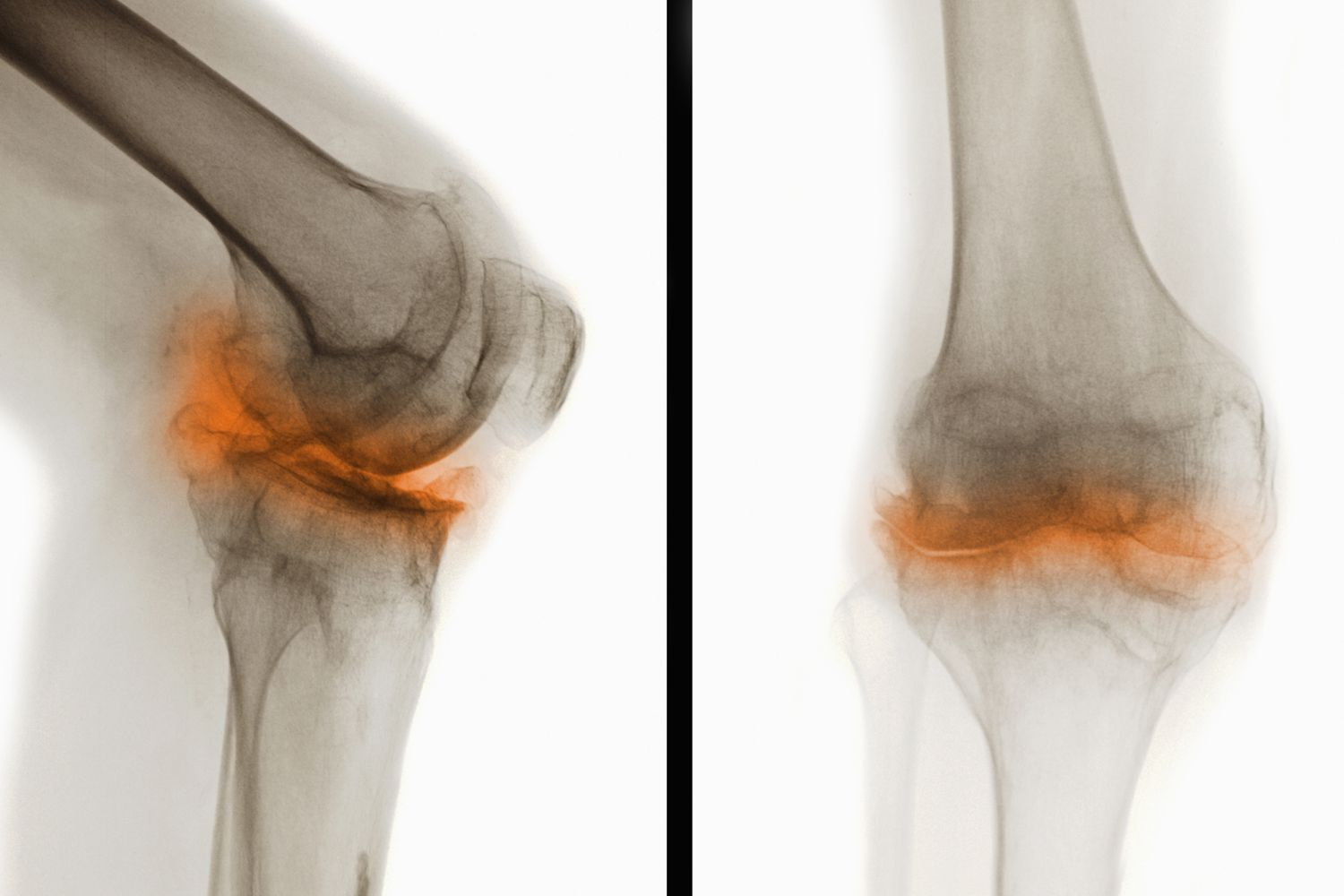 An X-ray showing osteoarthritis of the knee
