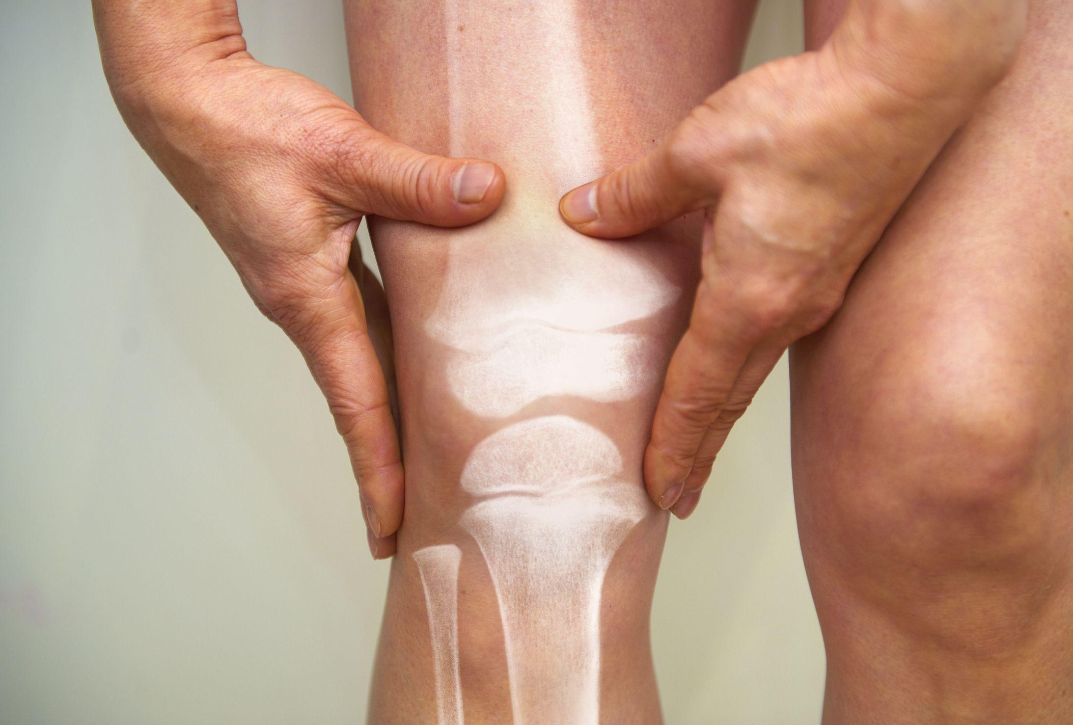 Preventing Rheumatoid Arthritis
